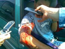 sidor_worker_wounded1